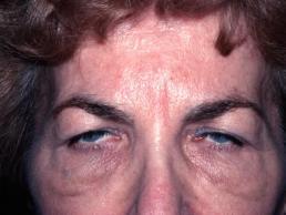 blepharoplasty-eyelid-surgery--case11-before1-09-22-2014-07-45-37