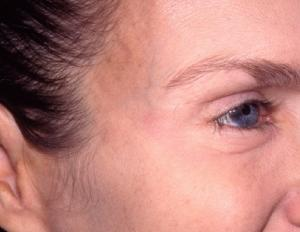 Botox after photo