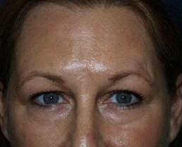 brow-liftforehead-lift--case5-before1-09-22-2014-07-56-59