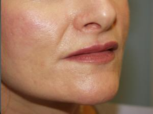 Fillers after photo