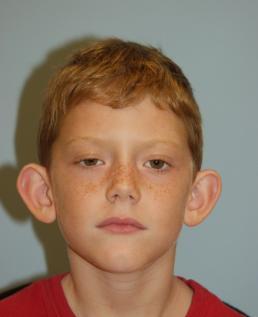 otoplasty-ear-surgery--case1-before1-09-22-2014-08-19-17