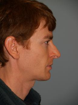 Male Rhinoplasty Before Photo