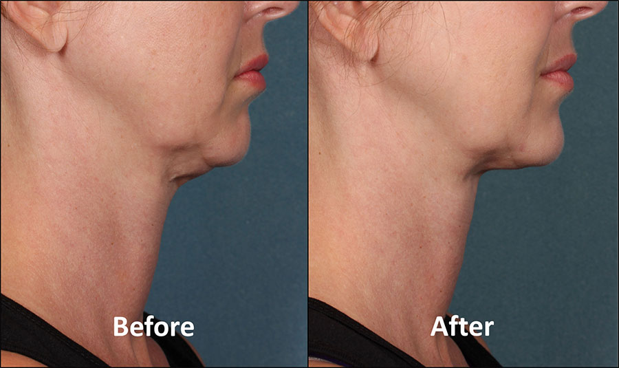 KYBELLA Patient - Before & After - Side View